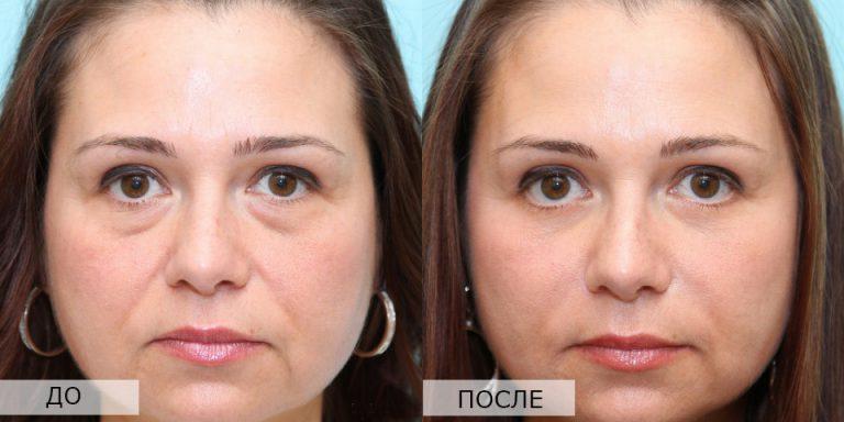 женщина до и после операции