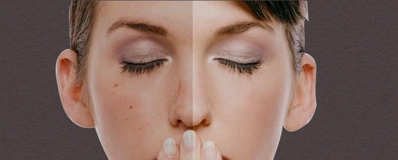 До и после маски