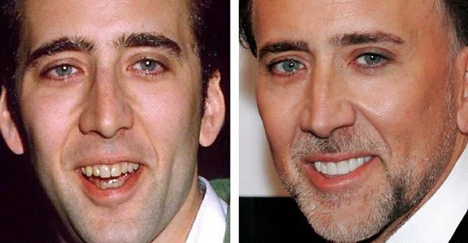 сколько стоят виниры на зубы цена