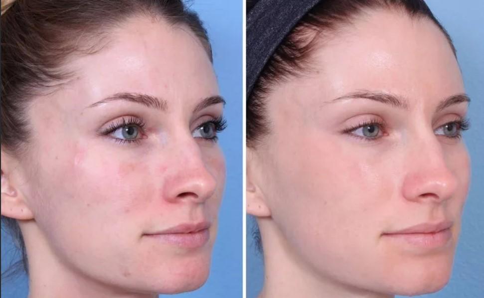 До и после парафиновой маски