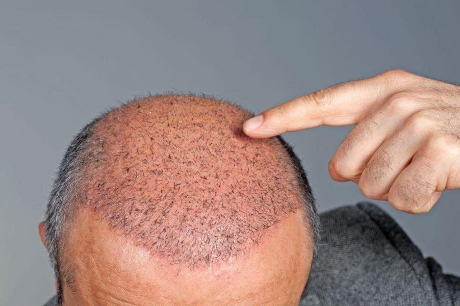 Лысина после пересадки волос