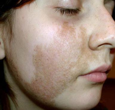 гиперпигментация кожи фото