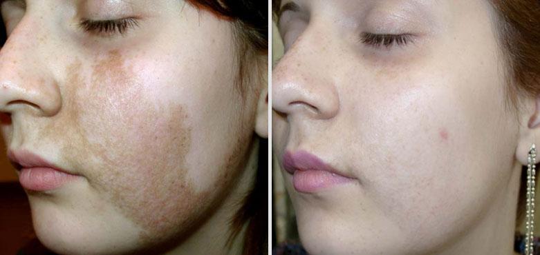 лечение геперпигментации кожи фото