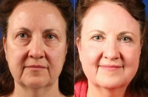фотоомоложение лица фото кожи до и после