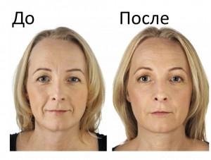 фотоомоложение лица отзывы фото кожи до и после