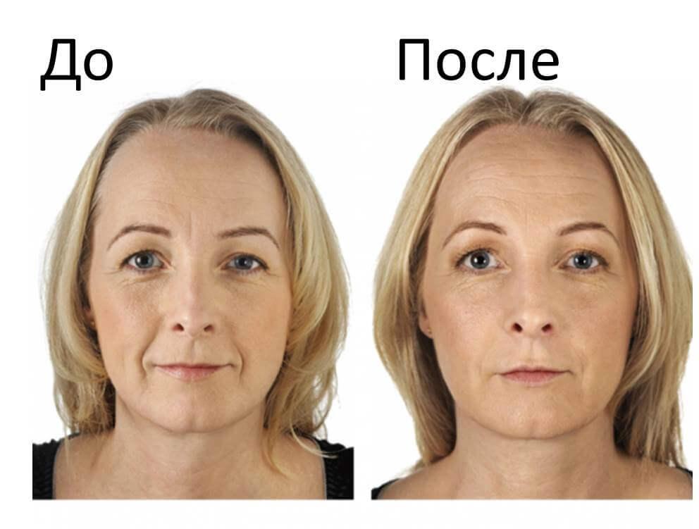 Фотоомоложение лица фотоомоложение отзывы до и после цена