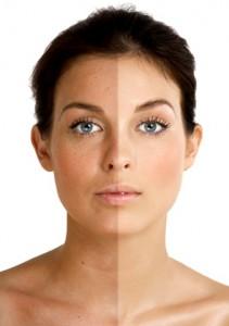 фотоомоложение лица отзывы до и после фото