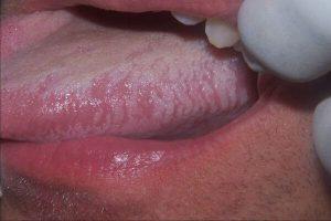 Лейкоплакия языка