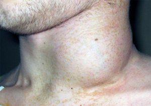 Увеличение лимфоузлов фото