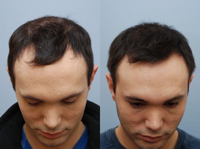 плазмолифтинг волос фото до и после хорошие отзывы