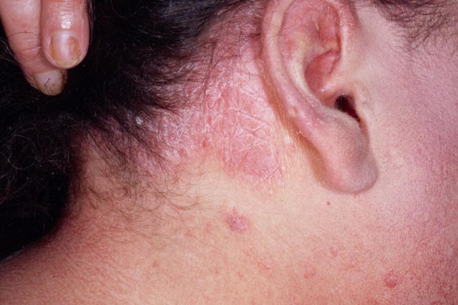 себорея кожи головы фото