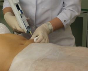 мезотерапия в косметологическом кабинете