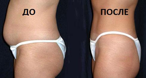 мезотерапия живота фото до и после