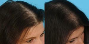 плазмолифтинг волос фото до и фото после отзывы
