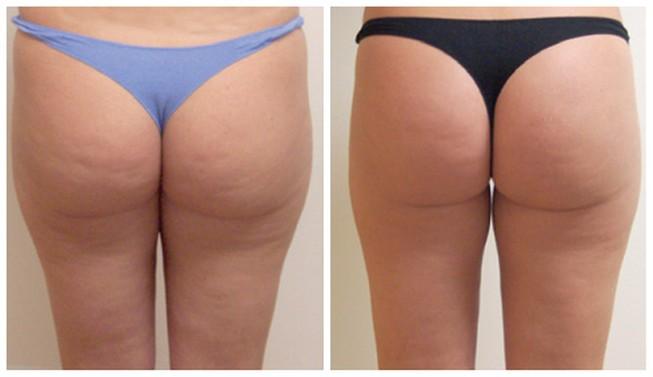lpg массаж до и после процедуры фото