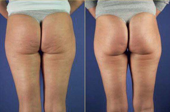 липолитики фото пациентов до и после