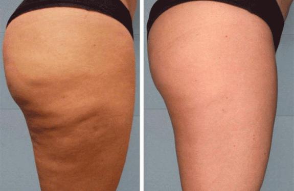 lpg массаж отзывы и фото до и после
