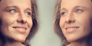 фото до и после хлористого пилинга