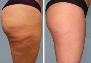 фото целлюлита до и после массажа