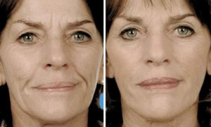 фото до и после массажа лица