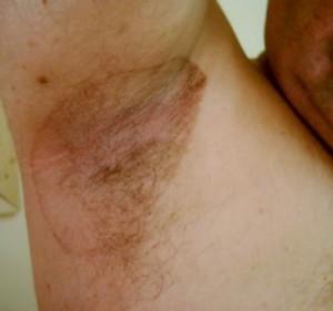 пятна на коже при заболеваниях печени фото