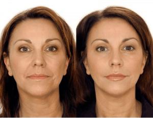 фото до и после моделирующего массажа лица
