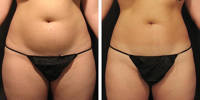 прессотерапия похудение фото до и после