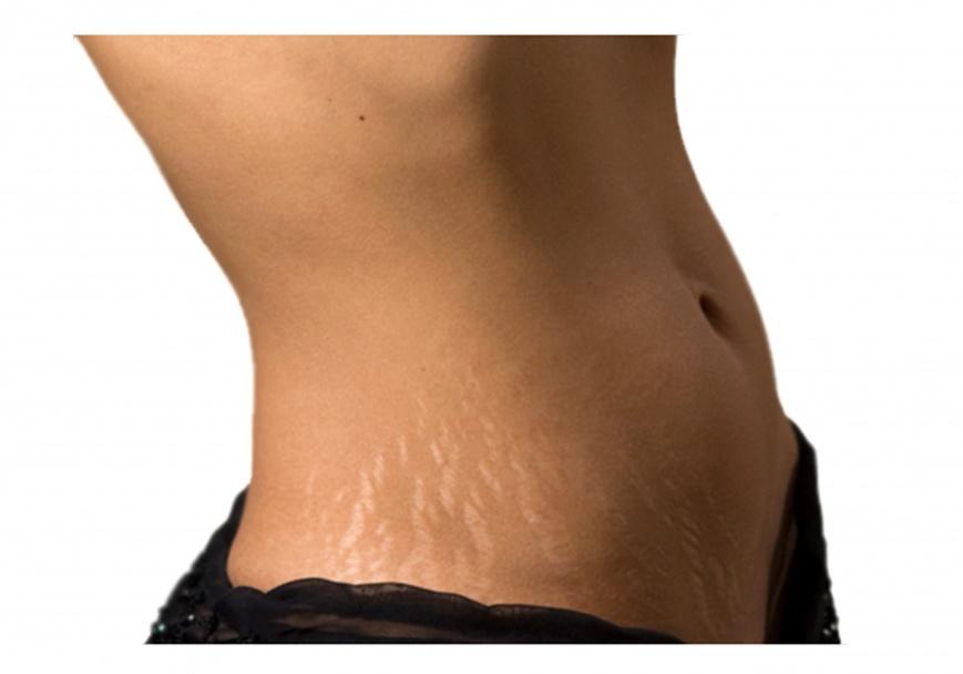 растяжки на коже у подростков лечение