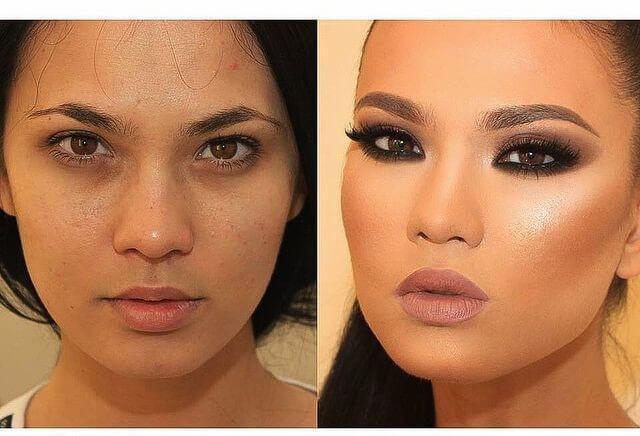 фото до и после коррекции лица