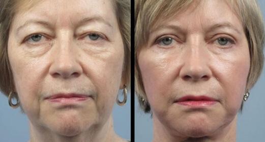 Лазерная липосакция на лице