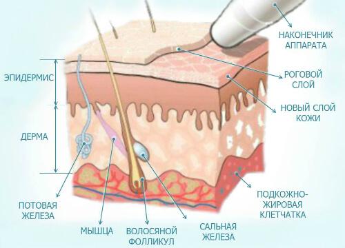 фото алмазной микродермабразии
