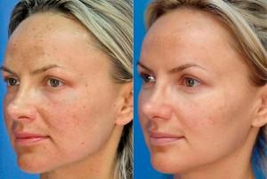 фото до и после алмазного пилинга лица