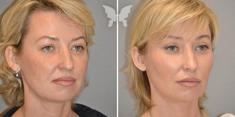 лифтинг лица отзывы  до и после