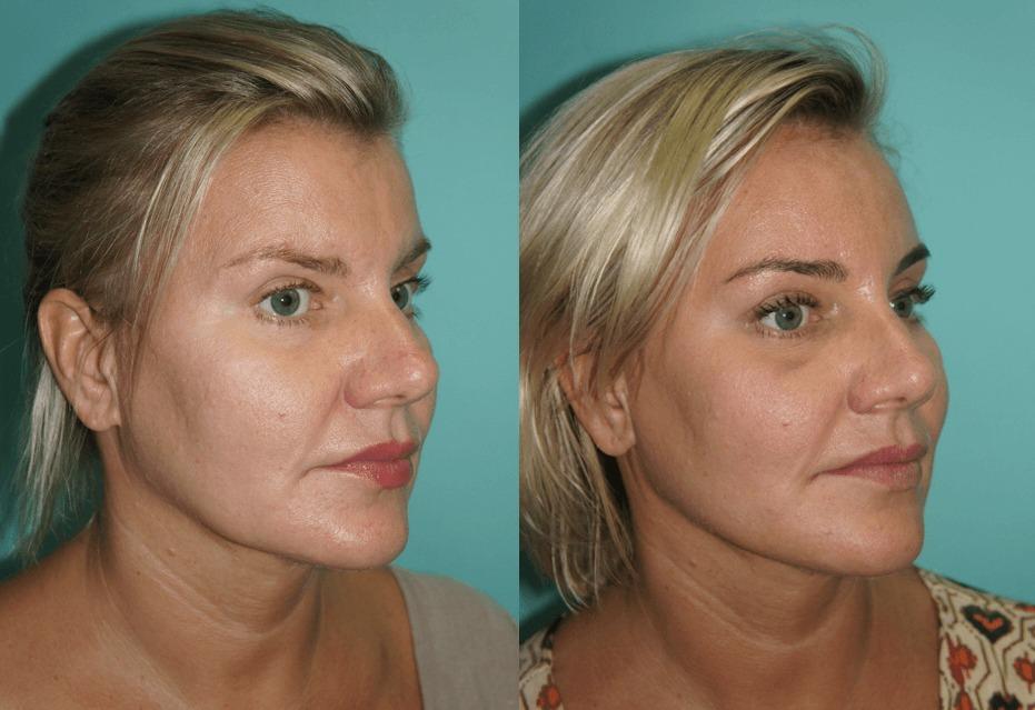 Подтяжка лица фото до и после отзывы