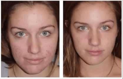 до и после применения вулканического мыла фото