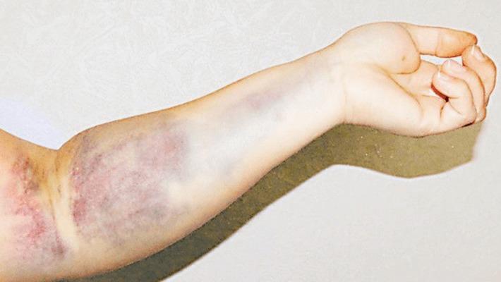 фото синяка после взятия крови