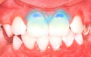 определение чистоты полости рта