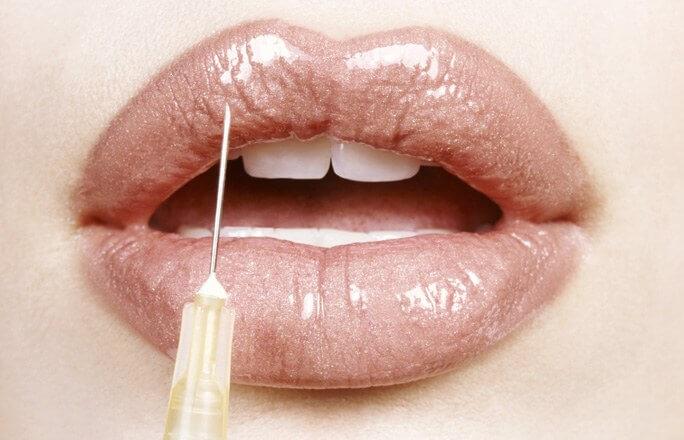 контурная пластика губ с гелем