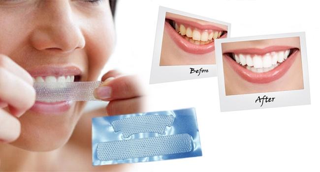Очистить зубы с помощью банановой кожуры