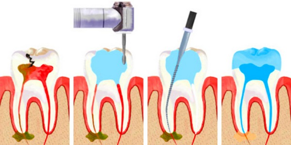 После удаления нерва из переднего зуба