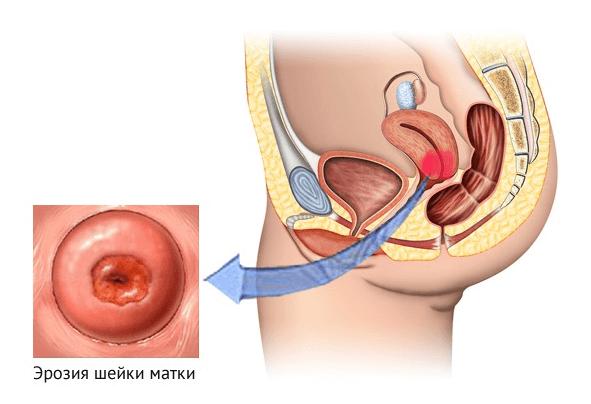 Геморроидальные узлы лекарственные применения