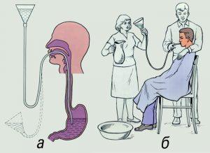 Фото схема промывания желудка у человека, отравившегося алкоголем