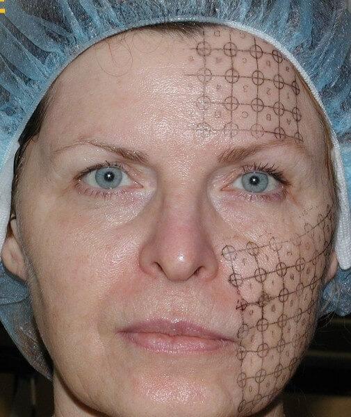 Фото подготовка к процедуре