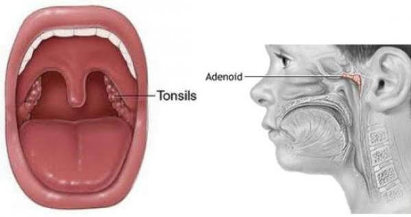Фото принцип аденоэктомии