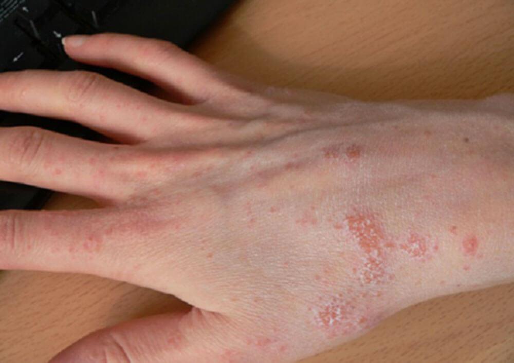 Фото симптомы заражения паразитами