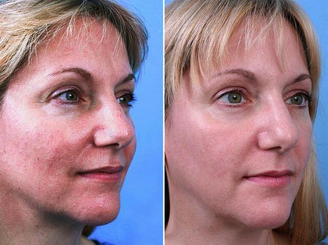 Фото до и после воздействия лазером на сосуды