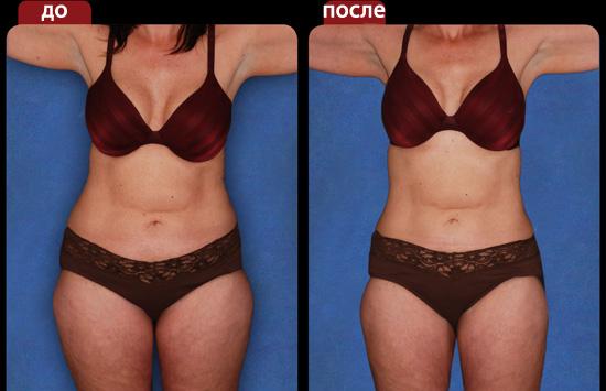 Фото результаты липосакции ушки на бедрах до и после