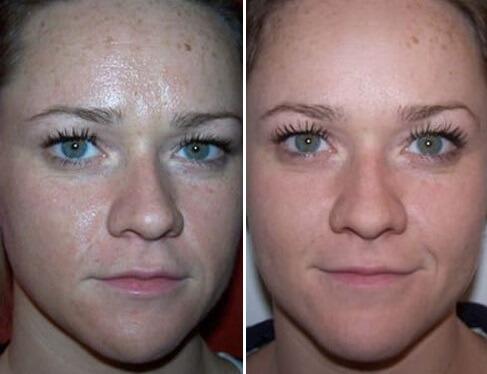 Фото очищение лица