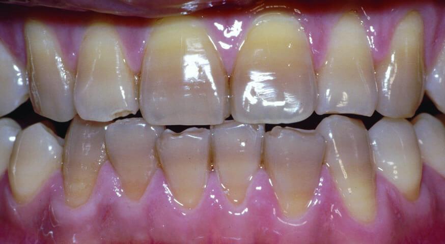 зубы под ультрафиолетом