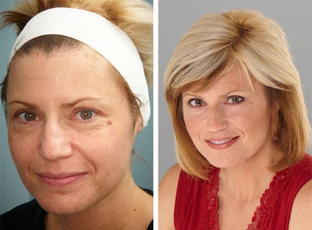 Фото до и после газожидкостного пилинга лица